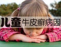 详细讲解儿童会患牛皮癣吗?