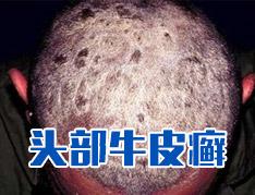 头部银屑病早期症状是什么样的?